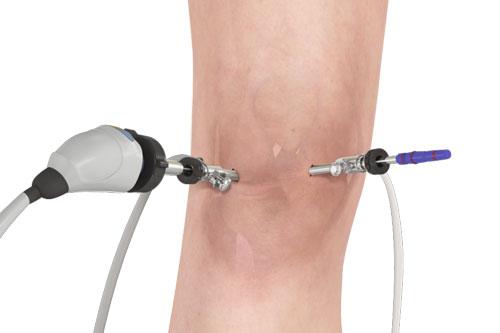 Knee Arthroscopy At Six Sigma Hospital