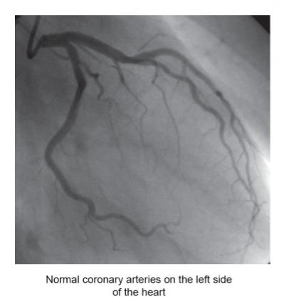 Angiography at six sigma hospital