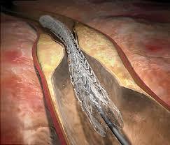 Angioplasty at Six Sigma Hospital